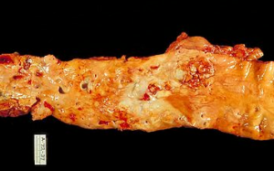 autopsy of severe atherosclerosis of the aorta  (by Wikipedia.org)